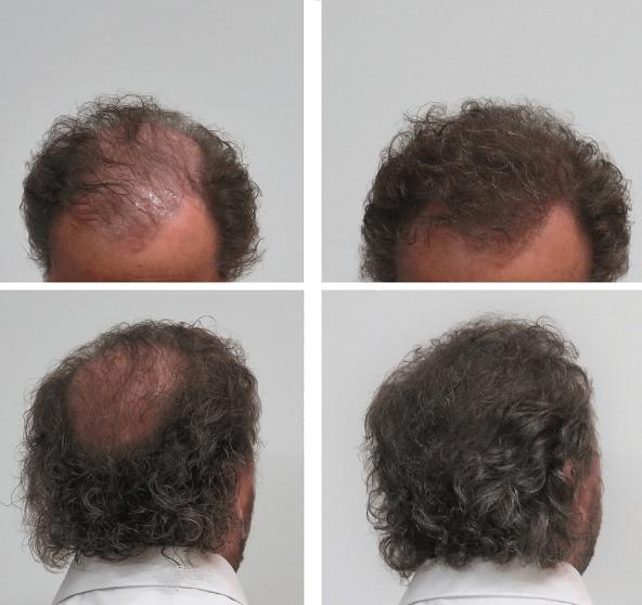 Boev hairfibers voor en na kale plek bedekken haarvezels kaalheid