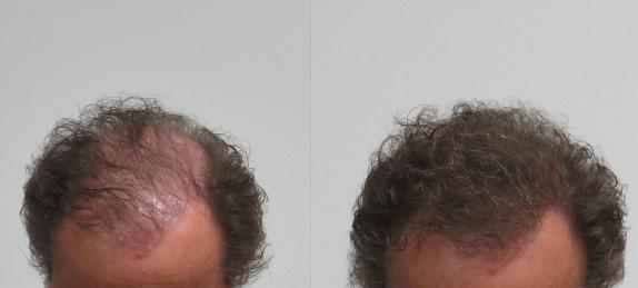 Boev hairfibers voor en na kale plek bedekken haarvezels kaalheid voorkant