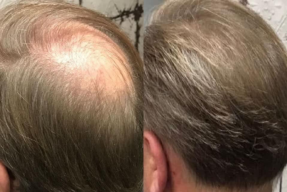 hairfibers voor na kale plek bedekken haarvezels boev