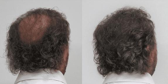 Boev hairfibers voor en na kale plek bedekken haarvezels kaalheid achterkant