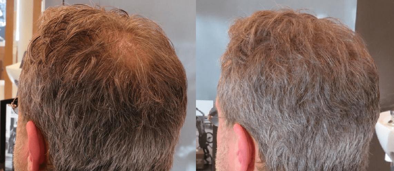 Boev Haarvezels voor en na man